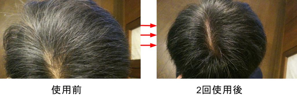 【養蜂堂】白髪用ヘアカラートリートメント玉髪(たまぐし)で白髪を染めてみた結果・・・