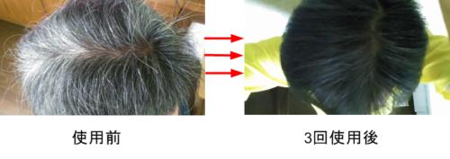 【アートネーチャー】ラボモヘアカラートリートメントで白髪を染めてみた結果・・・