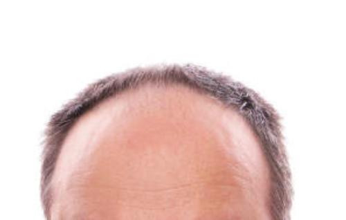 「白髪になればハゲない」は本当か?